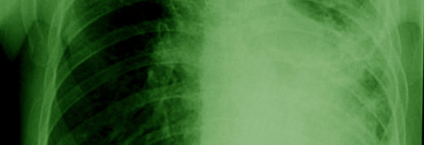 Unsound Asbestos 'Facts' Putting Workers at Risk and Hurting Mesothelioma Patients, Doctor Says