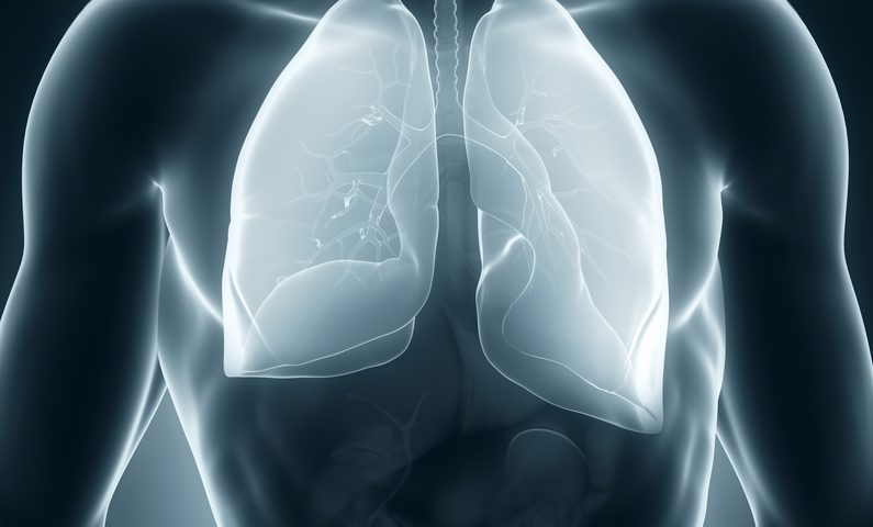 New Tool Seen to Distinguish Malignant Pleural Mesothelioma from Benign Disease
