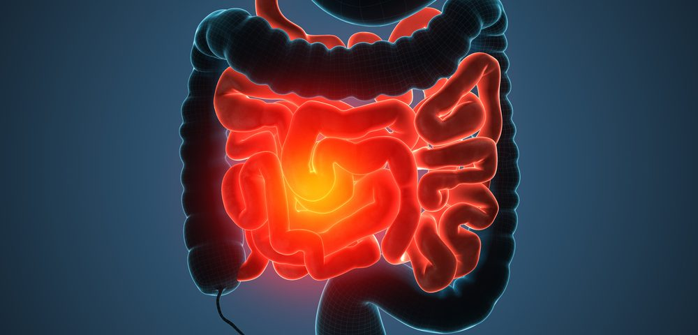 Peritoneal Mesothelioma Linked to Chronic Inflammation of Crohn's Disease in Study