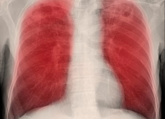 Pleural Fluid from Mesothelioma Patients Can Induce Tumor Growth, Chemotherapy Resistance