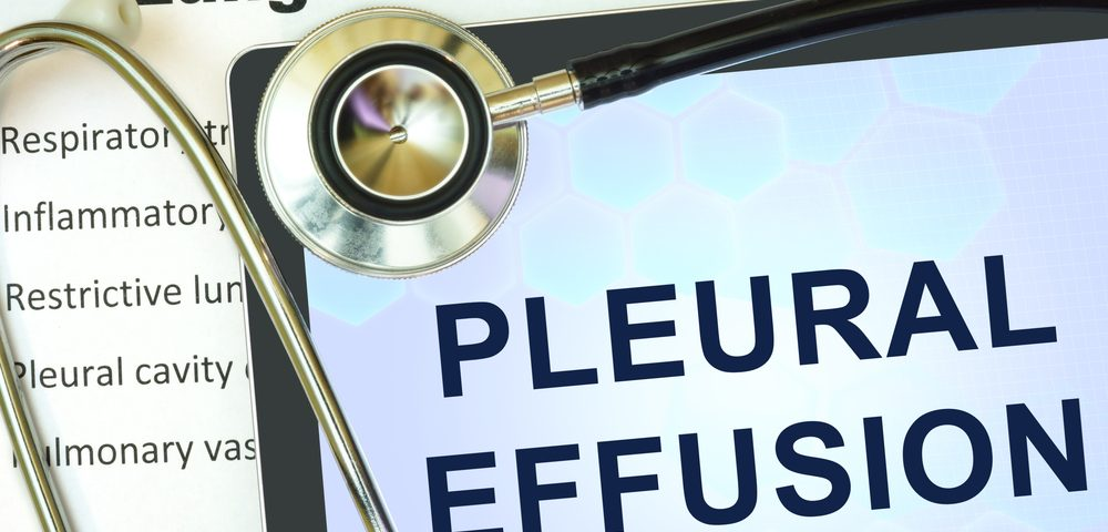 High Temperature Platinol Shows Promise in Treating Malignant Pleural Effusion