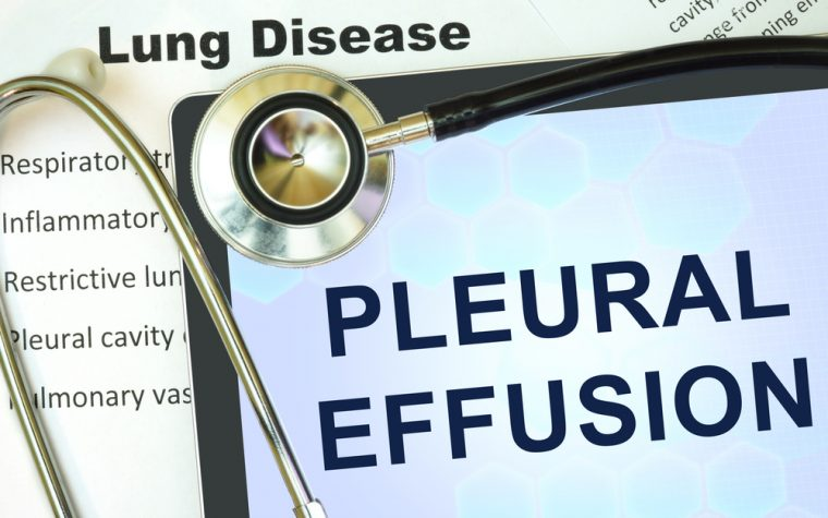Malignant pleural effusion treatment