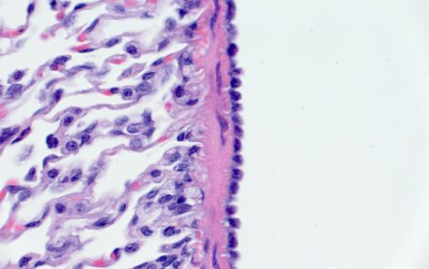 Mesothelin Protein Expression Can Help Predict Mesothelioma Patients' Survival, Study Reports